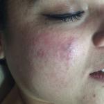 Rosásea Dermatologos Guatemala