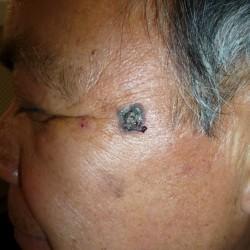 Carcinoma Basocelular - Cancer de piel